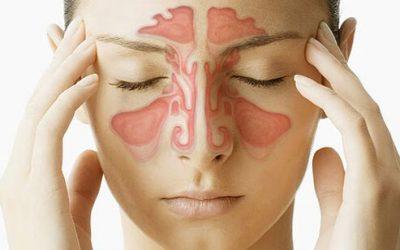 How to Relieve Sinus Pressure: Sinus Massage