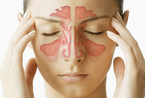 How to Relieve Sinus Pressure: Sinus Massage