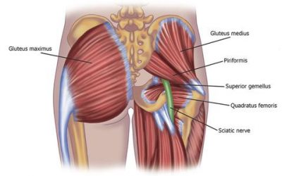 How Massage can Help for Sciatica